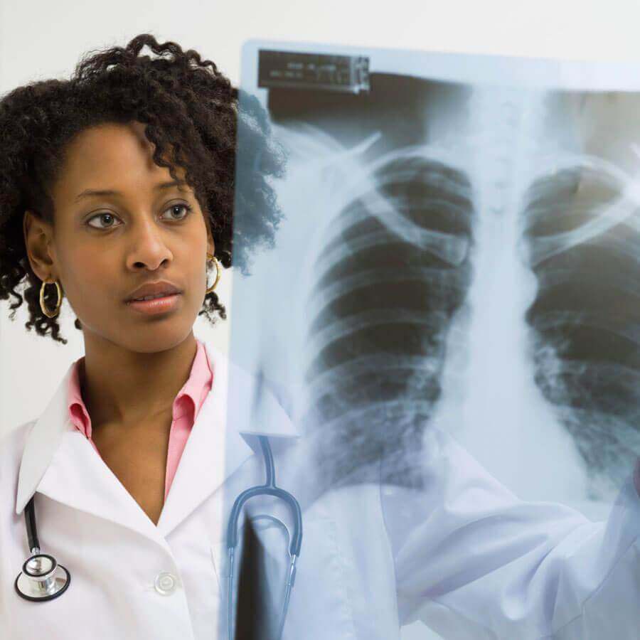 Doctor reviewing a chest X-ray
