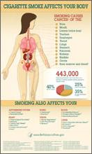 Infografía: sé TabaccoFree.gov